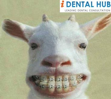 The cost of braces can vary depending upon many factors. The charges varies from region to region and dentist to dentist.