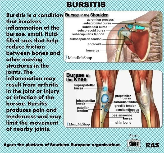what is bursitis a joint injury Elbow bursitis, also known as students elbow or olecranon bursitis, is the inflammation and swelling of the bursa which protects the end of the ulna bone at the back of the elbow repeatedly leaning on elbows (like many students do) can cause pain as the bursa can become inflamed.