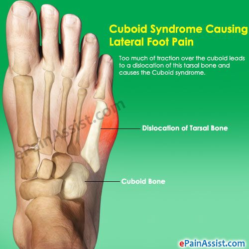 Cuboid Syndrome Causing Lateral Foot Pain