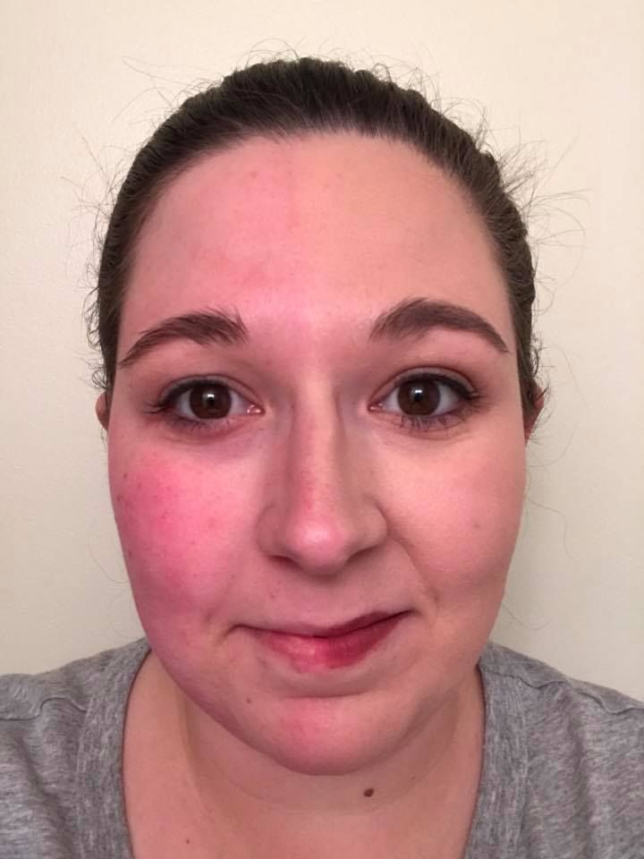Rosacea Suffer Check Out This Exceptional Foundation Coverage Rosacea Foundation Limelife Coverage Foundation Skin Care Redness Rosacea