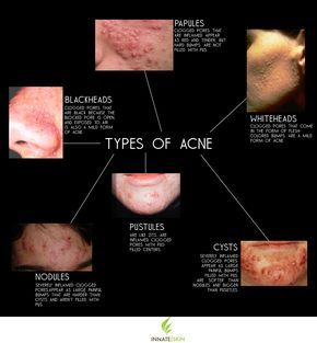 what acne types you're dealing with if you're serious about treating it as soon as possible...Here is a list of the main types of acne and... acne is caused