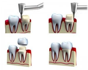 Dental Crown                                                                   #SmileOasis.com