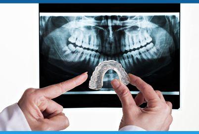 Dor de cabeça, no pescoço e na face podem ser sinais de bruxismo. Zumbido no ouvido, estalos na boca e sensibilidade nos dentes também. Saiba mais sobre causas e tratamentos.
