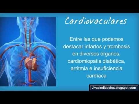 Consecuencias de la Diabetes - Lo que sucede con Niveles altos de Glucosa en la Sangre http://vivasindiabetes.blogspot.com/2013/05/complicaciones-severas-de-la-diabetes.html