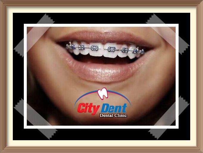 أنواع تقويم الأسنان و الأفضل بينهم مع مركز سيتي دينت Dental Clinic Dental Clinic