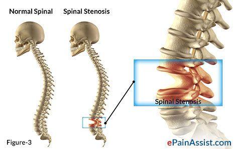 lumbar spinal canal stenosis pdf