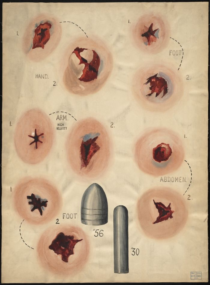 Different types of wounds pictures