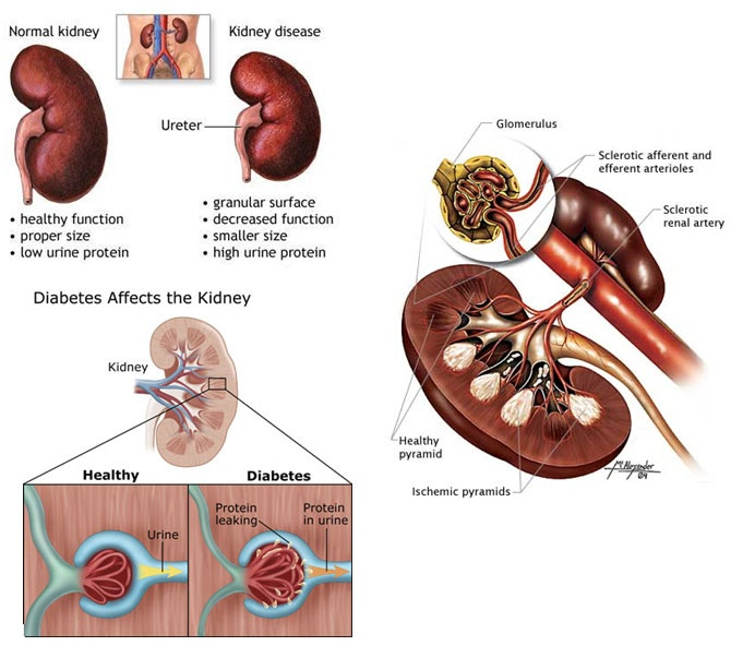 13 best Diabetic Nephropathy images on Pinterest | Diabetic ...