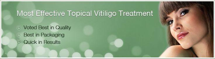 Vitiligo Symptoms include patchy skin and discoloration. Whatever your Vitiligo
