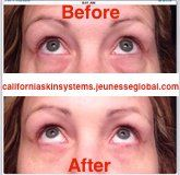 Instantly Ageless serum by JeunesseGlobal distributed by californiaskinsystems.jeunesseglobal.com. Minimize bags, fine lines and pores in 2 minutes! Contact me for details! #wrinkles #skin #beauty #money #esthetician #makeup #makeupartist