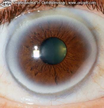 Arcus Senilus When a gray ring forms around the iris typically