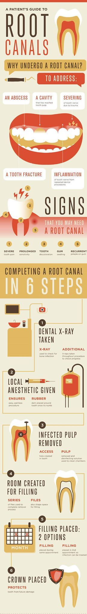 If a tooth's nerve is inflamed after repeated dental procedures, root canal treatment may be necessary to provide relief.