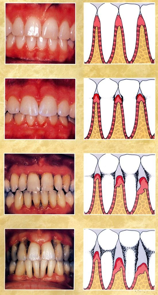 Healthy Gums Early Periodontitis Moderate Periodontitis Advanced Periodontitis