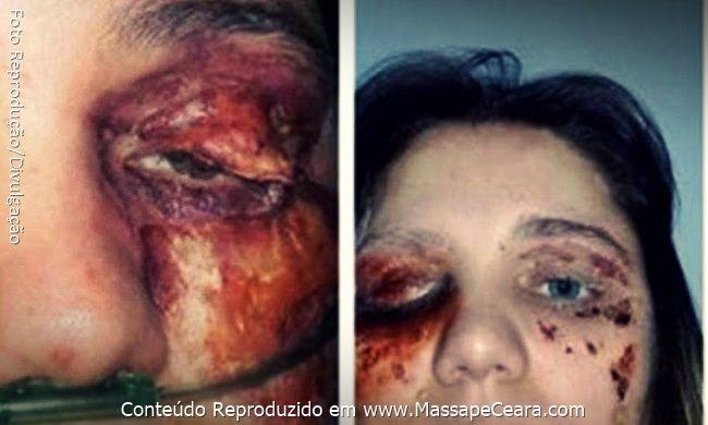 Mulher finge infecção no olho para conseguir dinheiro com doações para suposta cirurgia: ift.tt/2eYQOwX