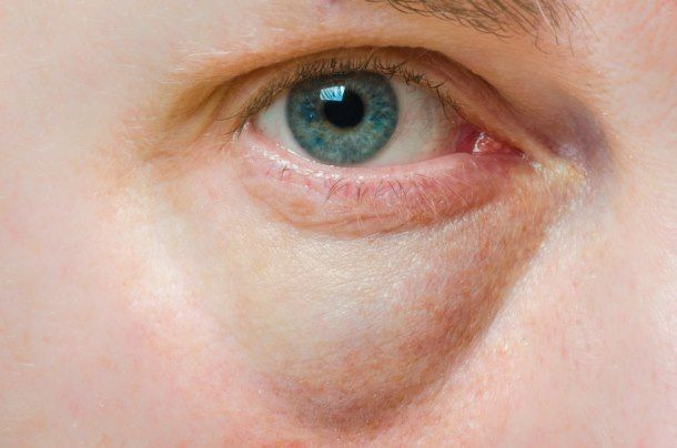 Wallen en donkere kringen onder de ogen zijn genetisch bepaald, en naarmate men ouder wordt steeds meer zichtbaar.