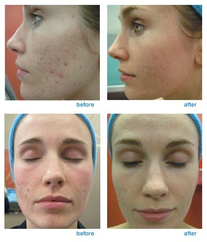 Facial laser surgery in maryland