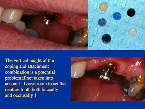 Partial Dentures Visit http://www.cosmeticdentistryreview.com/