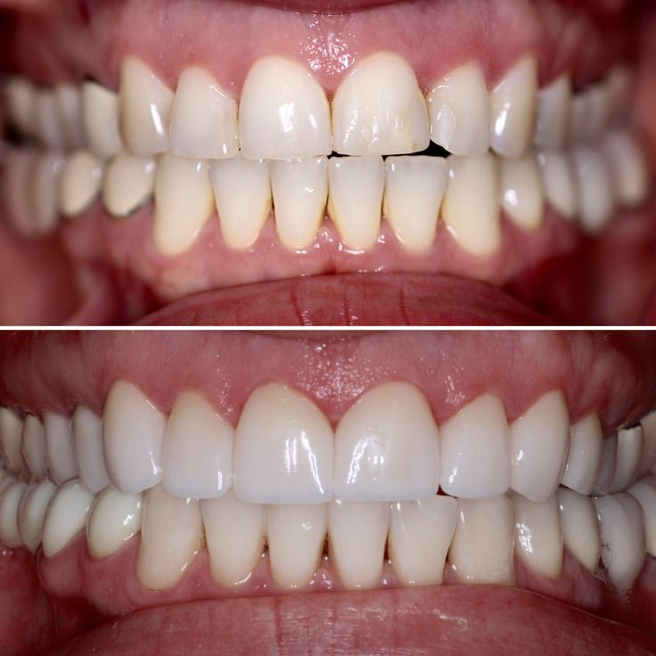 Upper 10 porcelain veneers, lower 5 unit zirconia bridge, laser whitening on lower teeth. #davincidental #bellevuedentist #dentist #veneers #whitening http://www.dentistinbellevue.com