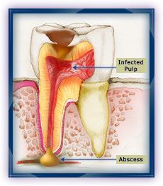 5. Pulp Involvement: If decay is left untreated, it will reach the tooth's pulp. This is where the tooth's nerves and blood vessels are found. The pulp becomes infected. An abscess (swelling) or a fistula (opening to the surface of the gum) can form in the soft tissues.