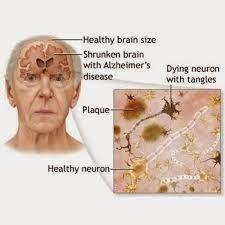 Obat Untuk Penyakit Alzheimer => Berikut ini merupakan informasi penting bagi anda atau keluarga anda yang mempunyai keluhan penyakit alzheimer, disini kami rekomendasikan pengobatan untuk penyakit alzheimer secara alami dengan mengkonsumsi obat herbal Ace Max's yang ampuh mengobati penyakit dengan aman dan tidak menimbulkan efeksamping bagi tubuh.