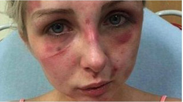 Officials Outraged At Man's Excuse For Why He Beat His Girlfriend Senseless - http://eradaily.com/officials-outraged-mans-excuse-beat-girlfriend-senseless/