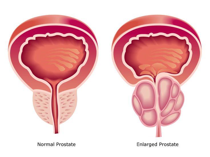all about prostate health #Prostateproblemsinmen