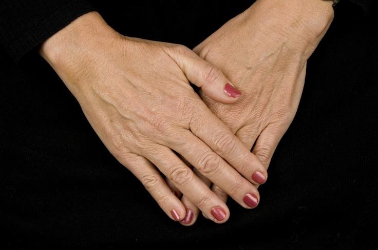 Hender har tynn hud og utsettes for vær og vind. Restylane kan gjøre hendene unge igjen.