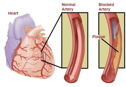 angina pectoris | angina pectoris Images and Graphics - Angina Pectoris Signs Symptoms is pain resulting from insufficient blood flow to the heart, with chest pains, and may include shortness of breath and loss of energy.  — healthfavo.com