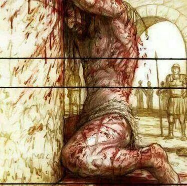 For by His stripes we are healed.