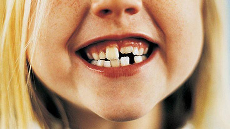 Ayer Domingo se celebró el #DíaMundialDeLaSaludBucodental  ¿Qué factores influyen y cómo podemos prevenir las #caries?  #DentalCare #SaludBucal #Dentista