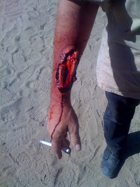 "Wound and broken bone on the set of ""Kidnap and Rescue ...