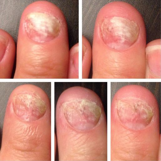 All-Natural help for Nail Fungus. This is an actual Amazon customers photo, just one month after starting to use Restore by ASTI Life USA. The secret is in the botanicals. http://www.amazon.com/dp/B00B10IBQI