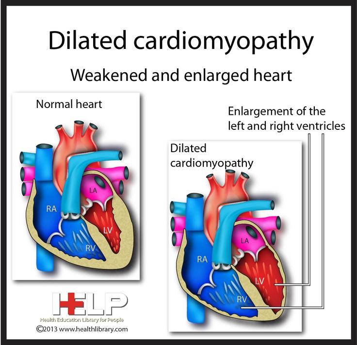 Dilated Carrdiomyopathy