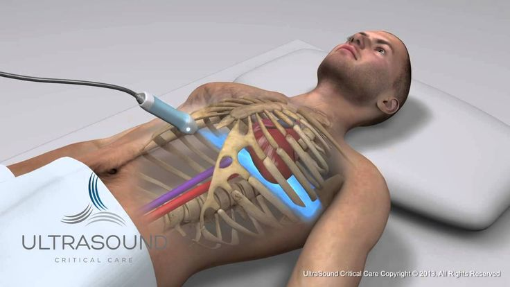 How to obtain: Subcostal Cardiac Ultrasound View - Training and Techniqu...