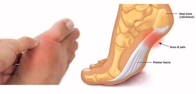 Our body sends us many signs about our health. For example, the feet are a good informer of your overall health. Pain in the feet or even numbness expresses symptoms of diseases before any other body part. Cramps in Foot Foot cramping may signify you are dehydrated or you workout too hard, but if this happens frequently, you may lack potassium, calcium, or magnesium in your diet. Stretch your feet before going to bed and add more calcium to your diet. Dry Skin on Feet   Dry skin on the feet…