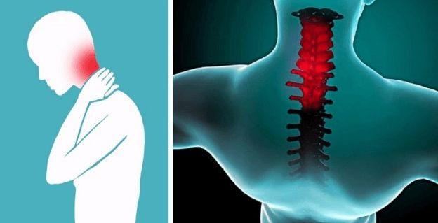 Trpíte často problémami s krčnou chrbticou? Už nemusíte, dnes Vám prinášame trik, ako stuhnutý krk odblokovať v priebehu 2 minút! | Báječné Ženy
