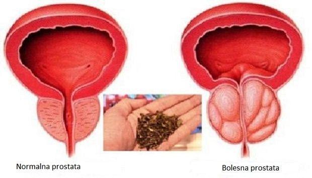 prostata e vas
