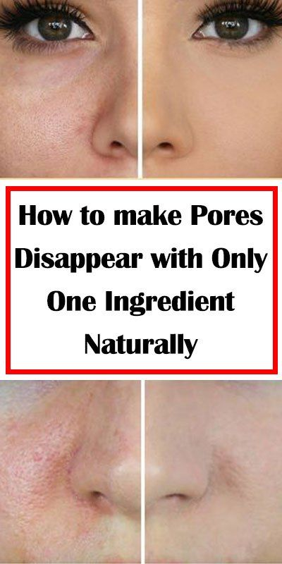 Make open pores disappear in only 3 days with these natural ingredients!