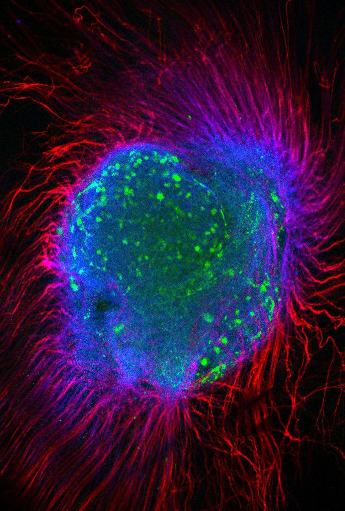 Fluorescence confocal image of a mouse dorsal root ganglion using fluorophores Cy3 (neurotubulin) and Cy2 (cell bodies). Specimen: Sarah Knox, NIDCR. Imaging system: LSM 710
