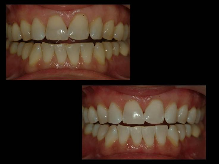 blanqueamiento dental en CLINICASMELT blanqueamiento con el sistema Brite Smile. Se realizó en sólo 1 hora y la paciente no tuvo ninguna molestia.
