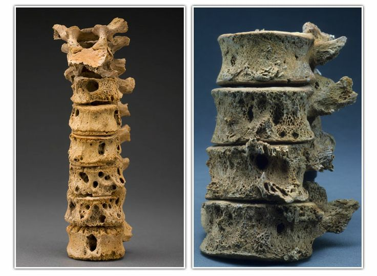 Spinal Column Bone Destruction From Tuberculosis   Source  Smithsonian Institution