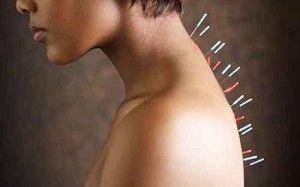 Alcoholism treatment acupuncture