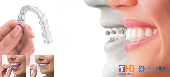 Invisalign - The most modern type of orthodontic treatment !