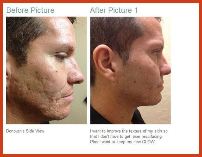 170027c274fd1f60c7e2adcf2c3618ff - How To Get Rid Of Post Inflammatory Hyperpigmentation Naturally