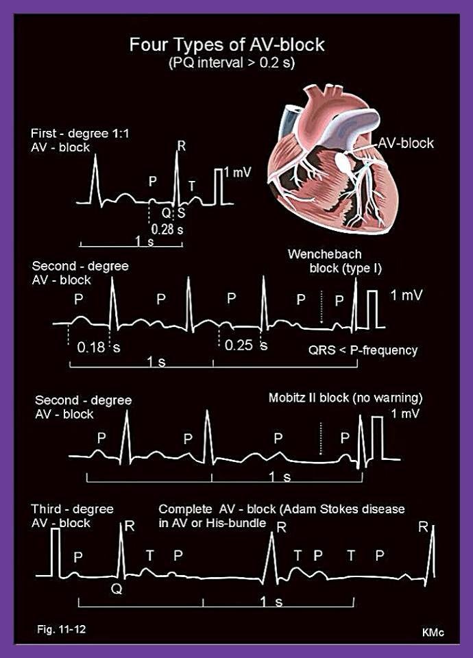 ECG - Four Types of AV-block