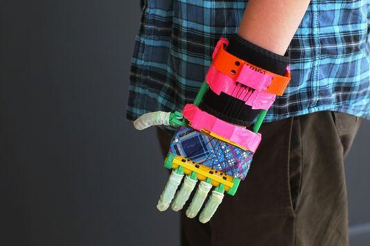 Un garçon de 6 ans, premier Français à recevoir une prothèse de main imprimée en 3D