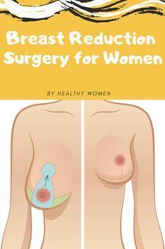 Breast Reduction Sur