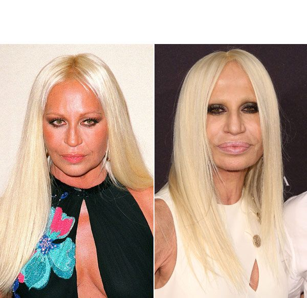 Dr. Katz in the Media! Donatella Versace's Shocking Plastic Surgery Makeover — Experts Speak...