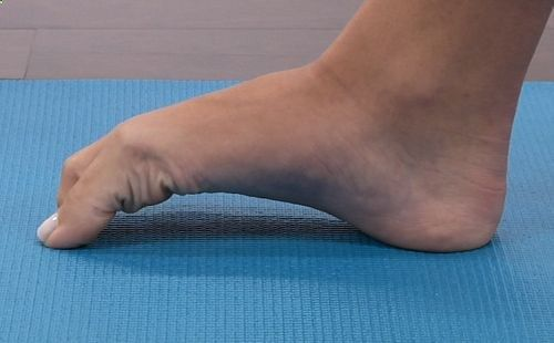 Five simple stretches and exercises that can cure  prevent plantar fasciitis. | Runners World #plantarfascitis #runninginjuries