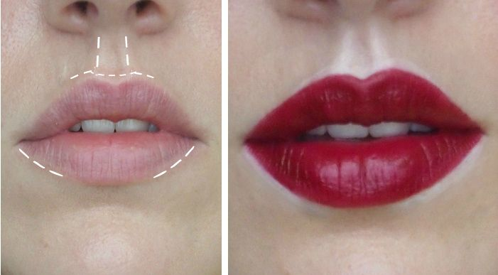 raue lippen
